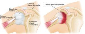 La inflamación capsular reduce el espacio existente en esta articulación