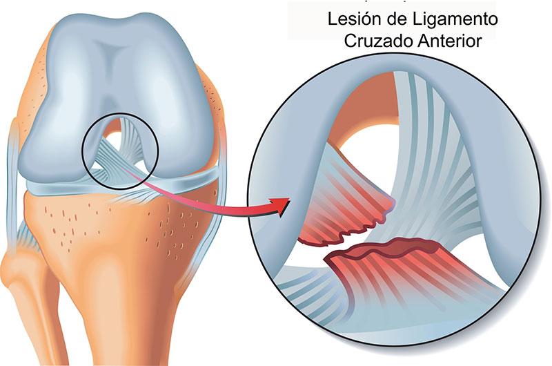 ruptura o lesi n de ligamento cruzado anterior ortopedia