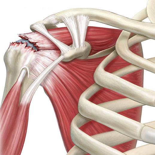 Resultado de imagen para lesion de manguito rotador